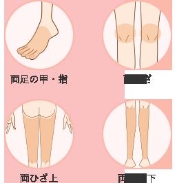 img-ashi-parts