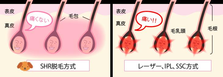 lacoco-hikaku03